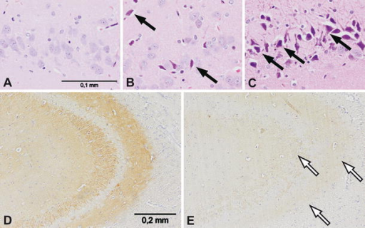 Neuropathological changes in the hippocampi of neonatally THIM-treated rats, 8-week old. Images a–c show dark neurons and ischemic-like degeneration (marked with black arrows) of the hippocampal neurons in the dentate gyrus of THIM-treated rats. a Control group; b THIM dose 12 μg Hg/kg; c THIM dose 240 μg Hg/kg; magnification ×400. Images d–e show diminished synaptophysin reaction (loss of synapses or synaptic marker protein) in the hippocampi of THIM-treated rats (marked with white arrows). d Control group; e THIM dose 240 μg Hg/kg; magnification ×200