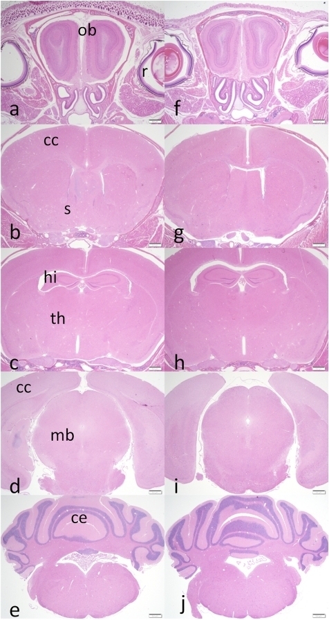 Coronal Sections Comparing Brain Anatomy Of Appwt Wt Wi