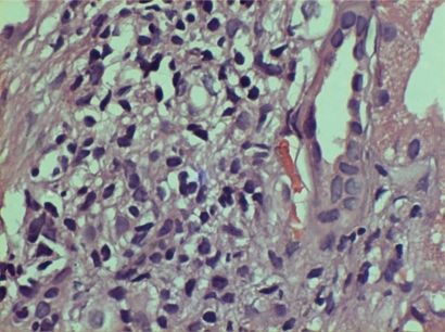 Acute on chronic tubulo-interstitial nephritis with mesangioproliferative glomerulonephritis.Note: immunoflouresence showed nonspecific IgM trapping.
