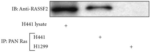 RASSF2 and K-Ras form an endogenous complex. Lysates from H441 and H1299 lung cancer cells were immunoprecipitated with a pan Ras antibody, fractionated on SDS gels, and immunoblotted with an anti-RASSF2 antibody. The endogenous interaction between Ras and RASSF2 was confirmed by the presence of RASSF2 in the proteins precipitated from the H441 cells but not the RASSF2-negative H1299 cells.
