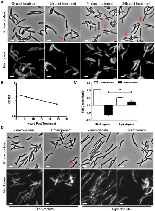 RipA depletion protects cells from meropenem-induced lysis.(A) A RipA conditional depletion strain of M. smegmatis was grown in the presence of inducer (RipA replete conditions) and 10 µg/mL of meropenem. Cells were imaged for morphological changes at various time points after meropenem addition. During meropenem treatment, septal and polar bulging were observed (arrows). Cell membranes were stained with FM4-64. Scale bar represents 2 µm. (B) Lysis of M. smegmatis cells from (A) was also characterized by OD600 at various times post meropenem treatment. (C) The RipA conditional depletion strain of M. smegmatis was grown with anhydrotetracylcine (aTc) inducer (RipA replete) or pre-depleted (RipA deplete) in the absence of aTc for 6 hours. These cells were then treated with 10 µg/mL of meropenem for 6 hours, washed, serially diluted and plated for CFU enumeration. (**, the difference between survival in RipA replete cells and RipA depleted cells in the presence of meropenem was significant with a p-value = 0.0006). (D) Cells post meropenem treatment in (C) were imaged by fluorescence microscopy to determine morphological changes. The plasma membrane was visualized with FM4-64. Scale bar represents 2 µm.