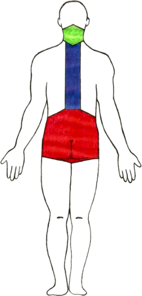 Person in the supine and standing position with the lum | Open-i