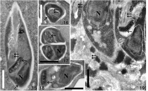 15–19. Ultrastructure of trypanosomatid flagellate Herpetomonas sp. Ind3 infecting Euplotes encysticus. 15–18. Flagellates harbored in the host cytoplasm. 15, 18. Longitudinal sections of flagellates. 16. Cross-sectioned flagellate through the flagellar pocket; the flagellum, which already bears a paraflagellar rod, is visible. Regularly distributed subpellicular microtubules are also well visible (diagonal arrow). 17. Cross section of two flagellate cells after fission. 19. Parasites in the macronucleus of the host. N, nucleus; horizontal arrow, kinetoplast; double arrows, flagellum. Bars = 1 μm.