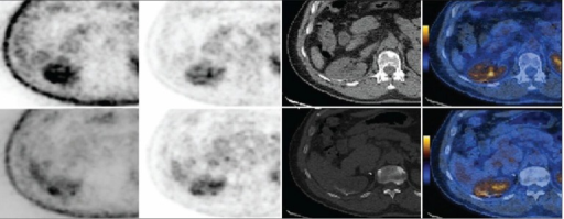 FDG PET/CT images showing the recurrence of PRCC along the surgical margins after partial nephrectomy