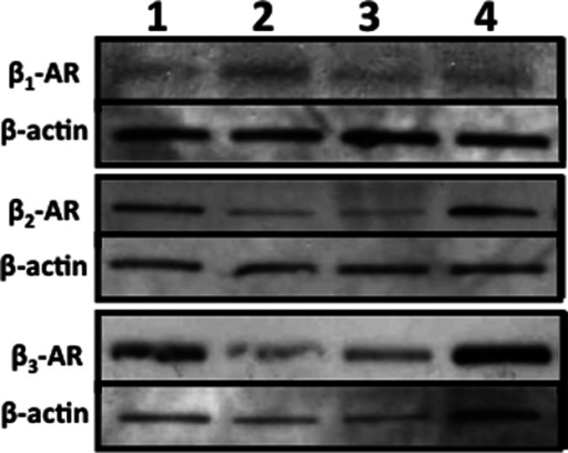 All three β-ARs are detected in HDMECs. Four different HDMEC strains (1–4) were lysed, proteins were separated electrophoretically and membranes were immunoblotted with antibodies specific for β1-AR (51 kDa), β2-AR (47 kDa), β3-AR (55 kDa) and β-actin (40 kDa) before chemiluminescent detection, as described in the methods.