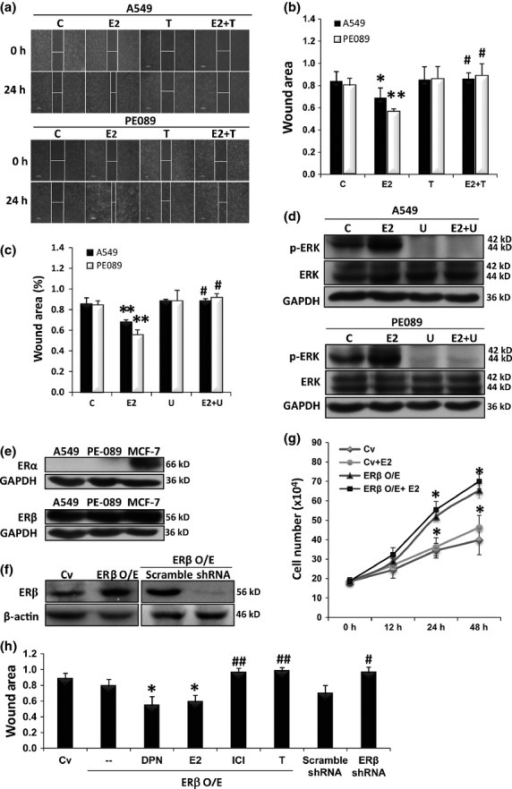 Estrogen promoted cell migration via estrogen receptor β (ERβ) activation of the MEK/ERK signaling pathway. (a) A549 cells and PE089 were subjected to wound healing assays for 24 h in the presence of 100 nM estradiol (E2), 10 μM tamoxifen citrate (T, ER antagonist), co-treatment with E2 and tamoxifen citrate (E2 + T), or ethanol equivalent as the control. (b) The wound area of A549 or PE089 cell migration was analyzed. The lines indicate the boundary of the edges of the wound after 24 h. The bars represent mean ± standard deviation relative to the cells treated with ethanol. (c) A549 and PE089 cells were cultured in the presence of E2 and/or U0126 (U, MEK inhibitor) for 24 h. U0126 reduced E2-induced cell migration. (d) Western blotting of the ERK and phosphorylated ERK of the cells treated with E2 and/or U0126 showed estrogen-induced ERK phosphorylation was inhibited by U0126. (e) Western blotting showed that ERβ was the predominant receptor type in the lung cancer cell lines. (f) Transfection of the A549 cells with the human ERβ gene or ERβ shRNA was performed to establish an ERβ overexpression cell clone (ERβ O/E) and ERβ depletion cell clone (shRNA), respectively. (g) ERβ O/E with E2 stimulation resulted in a maximal increase in cell growth rate. (h) The migratory ability of the various indicated cells was analyzed. DPN (ERβ agonist) and E2 induced migration of ERβ O/E cell. ER inhibitor (ICI 182780, ICI), tamoxifen and ERβ knockdown with shRNA resulted in a reduction of cell migration. *P < 0.05; **P < 0.01 compared with the control; #P < 0.05; ##P < 0.01 compared with the E2 group. Cv, control vector; O/E, overexpression.