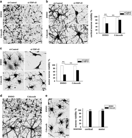 Celecoxib alleviates neuronal death mediated by TDP-43-deficient microglia. (a and b) BV2 cells were transfected with si-control and si-TDP-43. After 72 h, BV2 cells were treated with DMSO or celecoxib for another 24 h. The culture media from the last 24 h were harvested and used to culture primary cortical neurons transfected with lentiviral EGFP for 8 h (the conditioned medium assay as described for Figure 5). Then, the cells were visualized using confocal microscopy. Scale bars, 30 μm (a); 10 μm (b). The percentage of cortical neurons that were viable is shown on the right side. The data from three independent experiments are presented as the means±S.E.M.; **P<0.01; one-way ANOVA. (c) Similar experiments as in (a and b) were performed in primary cultured motor neurons. The cells were fixed, stained with an antibody against MAP2 and visualized using fluorescence microscopy. Scale bar, 10 μm. The percentage of motor neurons that were viable is shown on the right side. The data from three independent experiments are presented as the means±S.E.M.; **P<0.01; one-way ANOVA. (d) Primary cultured cortical neurons were transfected with lentiviral EGFP. After 72 h, the cortical neurons were treated with DMSO or celecoxib for another 24 h. Then, the cells were visualized using confocal microscopy. Scale bars, 30 μm, upper panel; 10 μm, lower panel. The percentage of cortical neurons that were viable is shown on the right side. The data from three independent experiments are presented as the means±S.E.M.; ns, not significantly different; one-way ANOVA. (e) Similar experiments as in (d) were performed in primary cultured motor neurons instead of primary cultured cortical neurons. The cells were fixed, stained with an antibody against MAP2, and visualized using fluorescence microscopy. Scale bar, 10 μm. The percentage of motor neurons that were viable is shown on the right side. The data from three independent experiments are presented as the means±S.E.M.; ns, not significantly different; one-way ANOVA