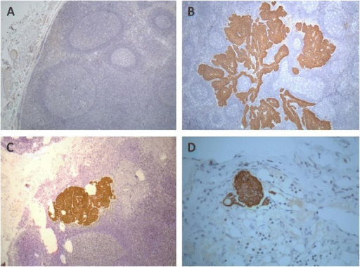 Immunohistochemistry staining for cytokeratins (M3515, clone AE1/AE3, Dako) in histologically negative lymph nodes of HNSCC patients. (A) Lymph node without evidence of metastases. (B) Lymph node with macrometastases. (C) Lymph node with micrometastases. (D) Lymph node with isolated tumor cells. A, B, and C: 40× magnification; D: 400× magnification.
