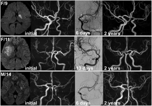 Examples of reversible arteriopathy. Note the infarction involving the basal ganglia and arterial beading (white arrows) on digital subtraction angiography performed within 2 weeks.