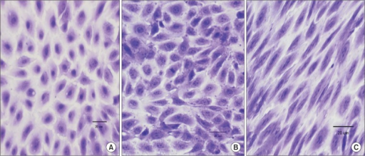 Morphology of cultured endothelial cells (ECs) in vitro after 5 days. (A) Control ECs (static condition). (B) ECs exposed to orbital shear stress (center of the well). (C) ECs exposed to orbital shear stress (periphery of the well). The edge of the culture well is to the right of the panel. (A–C) Stained with crystal violet (×400).