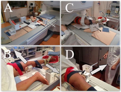 The patient is tested using the KneeM device (A) in the open MRI. (B) The knee is anteriorly constrained by 2 straps, with the lower limb fixed in internal rotation (20°). (C) Four degrees of flexion (0°, 20°, 40°, and 60°) can be adjusted. (D) A dynamometer was used to exert an anterior drawer force of 100 N.