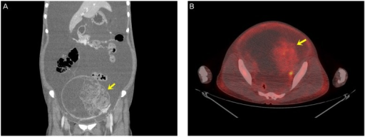 (A) Computed tomography showing a 15×14×13 cm3 well-defined solid pelvic mass including a cystic component (arrow) with massive ascites. (B) 18F-fluorodeoxyglucose positron emission tomography/computed tomography showing low peripheral 18F-fluorodeoxyglucose uptake (maximum standardized uptake value 2.1, arrow).
