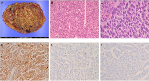 (A) Gross findings of the left ovarian tumor. (B, C) Histopathological features of the tumor cells (hematoxylin and eosin stain; B, ×100; C, ×400). (D-F) Immunohistochemical staining of the tumor cells (D, calretinin; E, alpha-inhibin; F, cytokeratin 7; D-F, ×200).