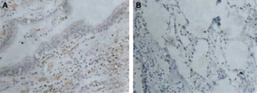 Fascin-1 protein-positive expression in the paracarcinoma tissues (DAB ×400).Notes: (A) Bronchial epithelial cells; (B) alveolar epithelial cells.