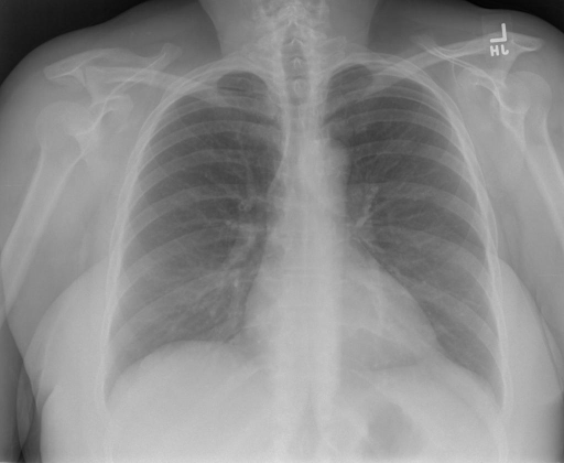PA AND LATERAL VIEWS OF THE CHEST dated XXXX at XXXX hours