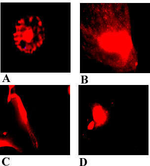 HuLEC, grown in the presence of xanthurenic acid for 96 hours, stained with Mito-Tracker Red CMXRos: (A) control cells; (B-D) in the presence of xanthurenic acid: (B) 10 μM, (C) 20 μM, (D) 40 μM.