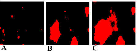 Increase of free Ca2+ in HuLEC after growth in the presence of xanthurenic acid for 96 hours. HuLEC were stained with Calcium Orange™: (A) control cells, (B) in the presence of 10 μM xanthurenic acid, (C) in the presence of 20 μM xanthurenic acid.