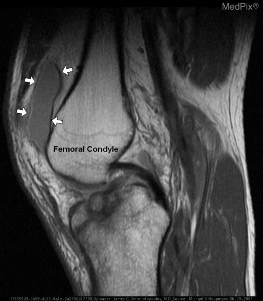 Sagittal T1 demonstrates diffuse signal throughout the tibia with multiple low-signal fractures extending to the articular surface.  The joint effusion expanding the suprapatellar bursa is clearly seen (arrows).