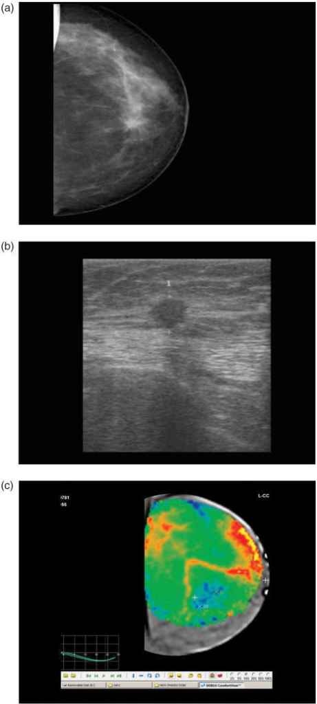 Case 1. (a) Mammographic images in craniocaudal view clearly depict a stellated lesion classified as BIRADS 5, with a high suspicion of malignancy. (b) High-resolution ultrasonography with a 10 mHz probe shows that the mammographic lesion corresponds to a hypoechoic, irregular nodule, BIRADS 5. (c) Dynamic optical imaging shows that the corresponding area of interest is highly hypoxic, with negative down slope dynamic curves, that strongly suggest an underlying malignant lesion.