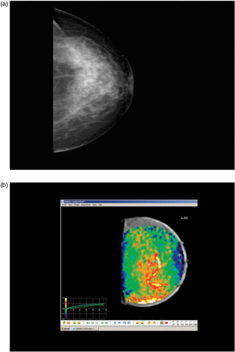 "Case 2. (a) Mammography craniocaudal view depicts an architectural distortion in the inner breast quadrants, classified as BIRADS 4. The diagnosis of radial scar, or otherwise ""Aschoff's"" lesion was advocated. All these cases were subject to surgical excision, due to the high percentage of associated carcinomas, usually of tubular subtype. In this case histology was a simple radial scar. (b) Optical mammography was positive, detecting an early red blush, in agreement with a proliferative underlying pathology but without significant hypoxia, as is usually seen in benign breast lesions."