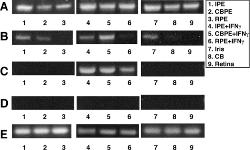 Detection of mRNA expression of costimulatory molecules in ocular PE. mRNA, extracted from cultured IPE, CBPE, and RPE cells with or without 100 U/ml recombinant IFN-γ (samples 1–6), and from freshly obtained mouse iris, ciliary body, and retina (samples 7–9), was reverse transcribed and amplified by PCR using primers for (A) CD80 (B7-1), (B) CD86 (B7-2), (C) PD-L1 (B7-H1), (D) CD40, and (E) GAPDH. PCR products were electrophoresed in 1.5% agarose gel and visualized by staining with ethidium bromide.