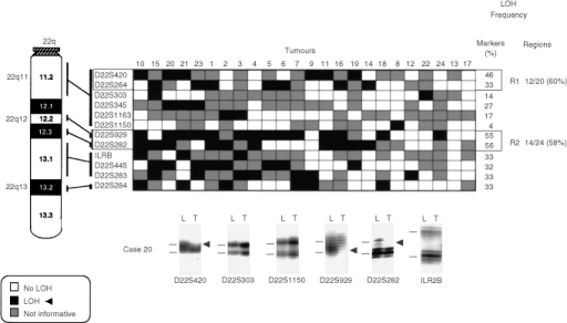 Patterns of chromosome 22q allele losses in gallbladder carcinoma. The cases have been arranged from left to right in decreasing order of chromosome 22q allele losses. Markers are placed in the predicted order from 22qcen-ter. Two regions (R1–R2) having frequent allelic losses are shown. Lower panel: six autoradiographs showing discrete allele loss at chromosome 22q in a microdissected GBC case (case 20) demonstrating loss and retention of neighbouring alleles. L, lymphocytes or normal stromal cells; T, microdissected invasive GBC. Horizontal bars on the left of the autoradiographs indicate the main allelic bands.