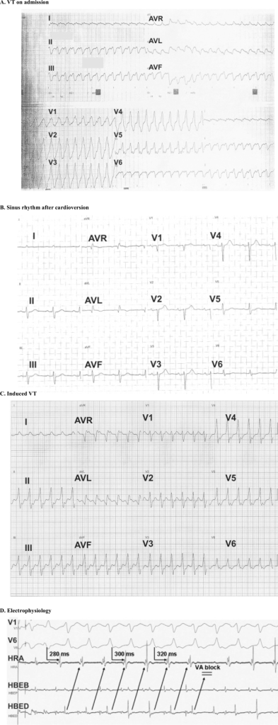ECG on admission showing the ventriculat tachycardia (VT) with RBBB morphology, (B). Restoration of VT to sinus rhythm with electrical cardioversion, (C). Induced VT with LBBB morphology during the electrophysiology study, (D). Electrogram during the electrophysiology study showing a 1:1 ventriculoatrial conduction with intermittent Wenckebach block.