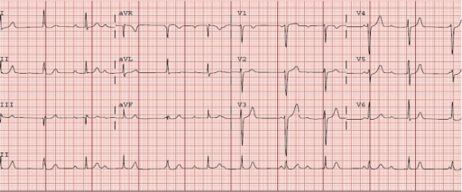 Admission electrocardiogram demonstrating complete heart block