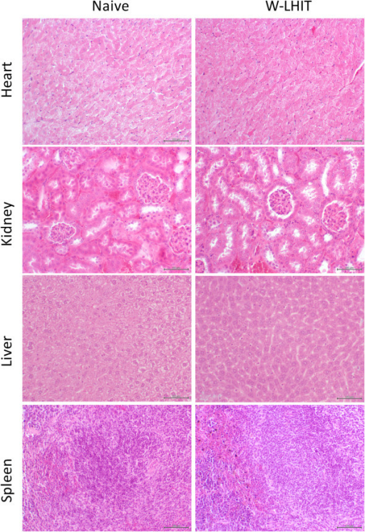 H&E stained sections of major organs of naïve mice and W-LHIT treated mice.