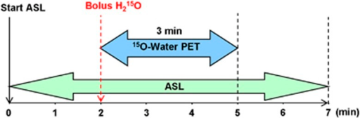 Timeline of the simultaneous measurement of [15O]water PET and ASL in a 3T hybrid MR-PET scanner. ASL takes 7 minutes and PET takes 3 minutes. After a bolus injection of 555 MBq [15O]water PET listmode data were recorded for 3 minutes. ASL, arterial spin labeling; MR, magnetic resonance; PET, positron emission tomography.