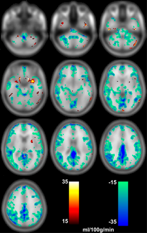 Images PET-CBF minus ASL-CBF showing differences (P<0.01 uncorr.) in the ranges of 15 to 35 mL per 100 g per minute and −15 to −35 mL per 100 g per minute. Especially in cortical regions CBF measured by ASL is higher than measured by PET. ASL, arterial spin labeling; CBF, cerebral blood flow; PET, positron emission tomography.