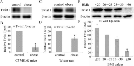 Twist 1 protein expression was decreased in the adipose tissue of obese subjects. (A/B) The expression of Twist 1 in subcutaneous adipose tissue from obese C57/BL6J mice was significantly downregulated compared with its expression in the control groups (*P < 0.05 vs. control). (C/D) Twist 1 expression was reduced in subcutaneous adipose tissues from obese Wistar rats (*P < 0.05 vs. control). (E/F) The expression level of Twist 1 in subcutaneous adipose tissues from individuals with a BMI ≥ 30 was shown to be lower than the level in non-obese individuals (* vs. 20 < BMI < 25 group, P < 0.05).