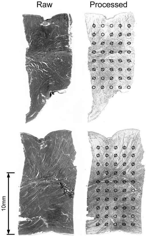 Two representative stained histological sections using haematoxylin-eosin of normal myocardium from different sites in the Ovine left ventricle.Left: unprocessed image. Right: convolved images identifying transmural anisotropy vectors in two dimensions from multiple sites indicated (circles) within each section. Circles arranged from epicardium (top) to endocardium (bottom). Anisotropy vectors orientated vertically at epicardial layer with distinct transitioning to horizontal orientation at the mid myocardial layer followed by diagonal orientation at the endocardial layer.