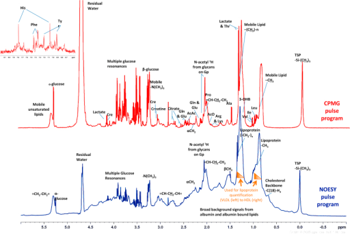 Typical 1H NMR spectra of serum analysed with two different pulse programs. Nuclear Overhauser Effect Spectroscopy (NOESY in blue) experiment used for Lipoprotein quantification and Carr–Purcell–Meiboom–Gill (CPMG in red) experiment used to quantify low molecular weight metabolites. Insert shows the aromatic region of the CPMG spectrum. Spectra were analysed and interpreted using the Finnish method (35, 42). The broad resonances arising from methy and methylene groups of lipoprotein lipids depend on the composition and size of the lipoprotein and can be deconvoluted to quantify lipoprotein subfractions. Key: TSP; 3-(trimethylsilyl)-2,2',3,3'-tetradeuteropropionic acid; N-acetyl 1H from glycans on Gp; glycoprotein (mostly α-1-acid glycoprotein); Leu: leucine; Ile: isoleucine; Val: valine; Thr: threonine; 3-OHB: 3-hydroxybutyrate; Ala; alanine; Arg: arginine; Lys: lysine; AcO; acetate; Pro: proline; Gln: glutamine: Glu: glutamate; AcAc: acetoacetate; Cre: creatinine; His: histidine; Phe: phenylalanine; Tyr: tyrosine. (For interpretation of the references to colour in this figure legend, the reader is referred to the web version of this article.)