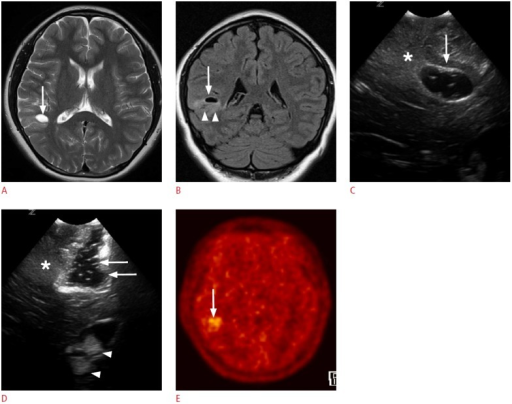 A 4-year-old girl with right temporal lobe epilepsy.A, B. Preoperative magnetic resonance images reveal a focal cystic lesion in the right temporal lobe (arrows). Note the ill-defined hyperintensities in the surrounding cortex and the subcortical white matter (arrowheads, B). C. Intraoperative ultrasonography (US) through the right temporal craniostomy shows a well-defined cystic lesion in the periventricular white matter (arrow). Note the illdefined hyperechogenic area at the caudal aspect of the cystic lesion (asterisk). D. After the resection of the cystic lesion in the temporal periventricular white matter with the adjacent cortex and the subcortical white matter, fluid-filled surgical defects (arrows) are clearly seen on US. However, the ill-defined hyperechoic area in the caudal part of the surgical defect remains (asterisk). Anechoic cerebrospinal fluid and hyperechoic choroid plexus (arrowheads) can be used as anatomic indicators. The pathologic diagnosis was a ganglioglioma. E. A methionine positron emission tomography-computed tomography image obtained 1 year later demonstrates residual tumors in the right temporal lobe (arrow).