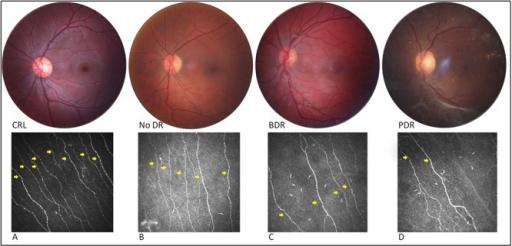 Fundus photograph of the central 30° with corresponding IVCCM image of the central subbasal nerves (yellow arrows) for control (non-mydriatic) (CTR) (A) and patients with diabetes and varying stages of DR (B, C and D).From left to right: (A) IVCCM image shows abundant corneal nerve axons for a control without retinopathy, B) significant decrease of subbasal nerves in a patient with diabetes 'without DR' (No DR), C) slight progressive loss of subbasal nerves in a patient with diabetes and background DR (BDR) and D) severe axonal loss on IVCCM in a patient with diabetes and pre-proliferative DR (PDR).