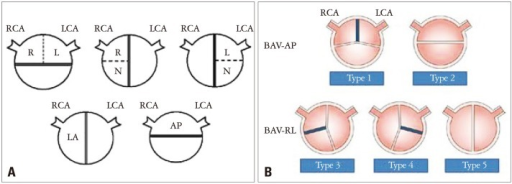 Diagrams showing the classic (A) and new (B) classifica ...