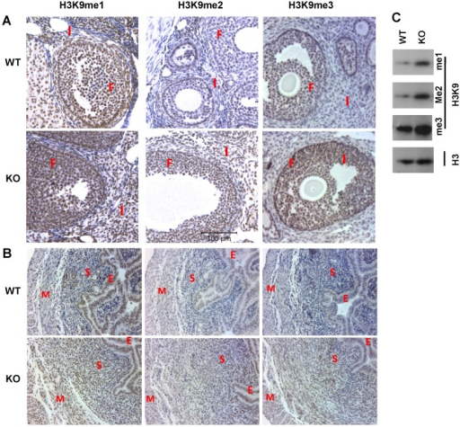 Knockout of Kdm3b increases the levels of H3K9 methylation in the ovary and uterus. (A) & (B). IHC analyses of H3K9me1/2/3 in the ovaries and uteri of WT and Kdm3bKO (KO) mice. F, follicular cells; I, interstitial cells; E, endometrial epithelium; S, endometrial stroma; M, myometrium. Two mice and multiple sections from each mouse in each genotype group were examined. (C). Analysis of H3K9me1/2/3 in the uteri of WT and KO mice by Western blotting. Histone H3 served as a loading control.