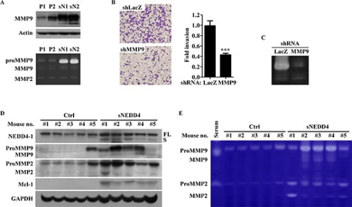 sNEDD4 promotes tumor invasion through MMP9(A) MMPs protein levels and activities were determined using Western blot (upper) and gelatin zymography (lower) analyses. (B) Invasion abilities of sN1 cells infected with LacZ shRNA (shLacZ) or MMP9 shRNA (shMMP9) were determined with the Transwell invasion assay, and the corresponding MMP9 activities shown in panel (C) Western blot (D) and gelatin zymography (E) were performed with proteins extracted from primary tumors of orthotopic mouse model.