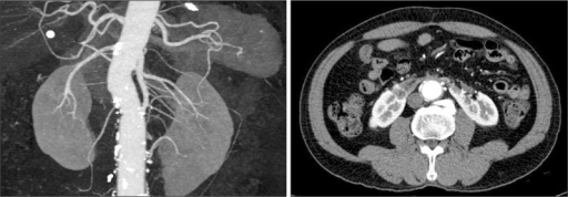 Patent left accessory renal artery, occluded right accessory renal artery, and infarction of the isthmus on computed tomographic angiograms obtained at 18 months postoperatively.