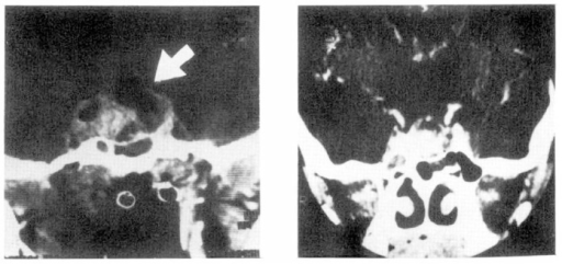 Left: Remnant of intrasetlar and left parasellar mass, following sugery and first course of chemotherapy. Cystic transformation of suprasellar mass can be seen (arrow) Right: Marked shrinkage of left parasellar mass and cystic suprasellar mass with a remnant intrasellar mass, following raditotherapy.