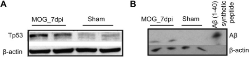 Western blot validation of hypothetical pathway.(A) Analysis of protein amount of TP53 in whole retinal lysates of preclinical EAE (MOG_7dpi) and sham-immunized control animals revealed 21% up-regulation of total p53. (B) Western blot-analysis of APP-cleavage product Aβ revealed an increase at MOG_7dpi.