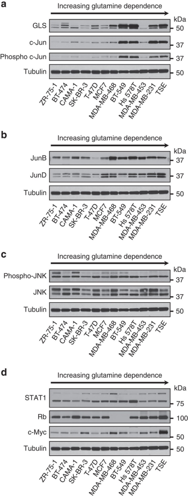 c-Jun correlates strongly with GLS levels in human breast cancer cell lines.Cells were collected at ∼60% confluency from RPMI growth medium supplemented with 10% FBS, and whole-cell lysates prepared and analysed by western blot. Samples were ordered according to glutamine dependence, increasing from left to right (Supplementary Fig. 3). (a) Correlation between c-Jun/phospho-c-Jun and GLS levels. Quantification of GLS and c-Jun band intensities allowed a Pearson correlation coefficient of 0.85 to be determined (Supplementary Fig. 4a). (b) Other Jun-family members do not correlate strongly with GLS levels. (c) Under 10% FBS culture conditions, p46 JNK (lower band) is active in all of the breast cancer cell lines. Neither JNK nor phospho-JNK correlate with GLS levels. (d) Other reported regulators of GLS expression do not strongly correlate with GLS levels.