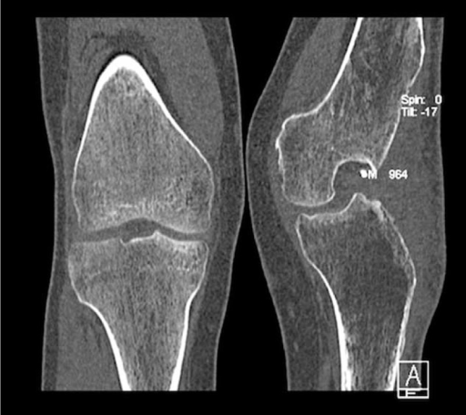 The computed tomography AP scan of both knees before arthrodesis.