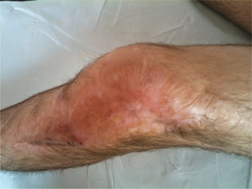 Large skin defect of the knee region.