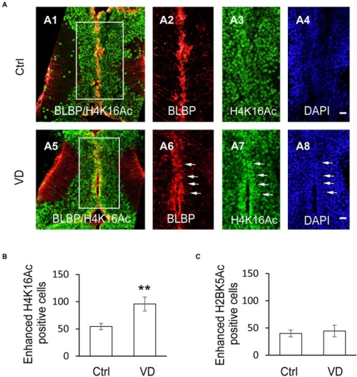 Visual experience induces selective increase of histone H4 acetylation at lysine 16. (A) Fluorescent images showing representative H4K16Ac+ cells in control (A1–A4), and VD (A5–A8) tadpoles. Scale: 50 μm. (B) Summary data revealed that visual deprivation increased the number of H4K16+ cells with enhanced fluorescence, which are colocalized with BLBP-labeled cells along the midline. (C) Summary data showing that VD barely changed the number of H2BK5+ cells with enhanced fluorescence. **p < 0.01.