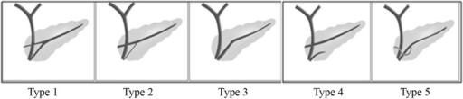 Variations in the configuration of the pancreas duct. Type 1: Bifid configuration with dominant duct of Wirsung, Type 2: Bifid configuration with dominant duct of Santorini without divisum, Type 3: Rudimentary non-draining duct of Santorini, Type 4: Pancreas divisum, Type 5: Ansa pancreatica.