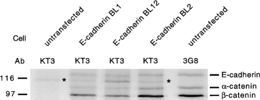 Catenins bind to E-cadherin and epitope tagged  (Tyr→ Ala) E-cadherin mutants. Parental MDCK cells or cells  expressing individual mutant E-cadherins were grown on Transwell™ filters for 7 d, labeled for 24 h with 35S-Met/Cys, extracted,  and immunoprecipitated with either mAb 3G8 (against the extracellular domain of canine E-cadherin) or mAb KT3 (against KT3  tag). Note that KT3 antibody immunoprecipitated nonspecifically a protein band with apparent molecular mass of ∼112 kD in  untransfected cells (marked with asterisk). In cells expressing  KT3 tagged E-cadherin mutants, specific bands corresponding to  E-cadherin, α-catenin, and β-catenin were detected.