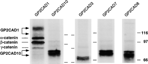 Catenins bind to GP2CAD1 but not GP2CAD3,  GP2CAD7, GP2CAD8, or GP2CAD10. MDCK cells expressing  individual constructs were grown on Transwell™ filters for 7 d,  labeled with 35S-Met/Cys for 24 h, extracted, and proteins were  immunoprecipitated with GP2 antibody. Immunoprecipitates  were resolved by 10% SDS-PAGE. Markings to the right of columns for GP2CAD10 and GP2CAD8, and those to the left of  columns of GP2CAD3 and GP2CAD7 show the positions of molecular mass markers; 116, 97, and 66 kD.