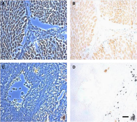 Immunohistochemical localisation of voltage-gated Na+ channel (VGSC) protein expression in human lung tissues, using a commercial pan-VGSC antibody. (A and B) SCLC, (C and D), normal lung epithelia. Voltage-gated Na+ channel immunoreactivity showed marked upregulation in SCLC (B vs D). Left hand panels (A and C) represent phase contrast images, right hand panels (B and D) are bright field images. Scale bar, 15 μm, applicable to all parts of the figure.